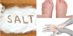 أعراض زيادة الأملاح في الجسم
